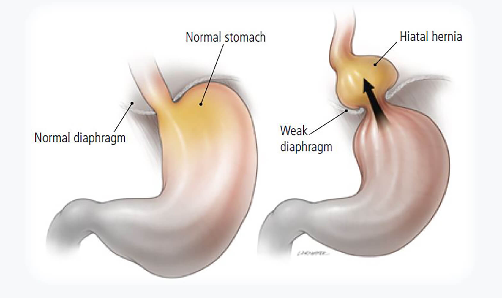 Hiatus hernia - Obesity surgery WA