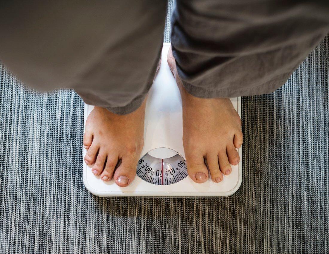 obesity perth